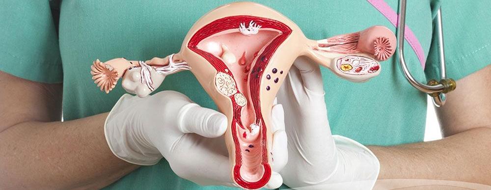 Ovario poliquístico: advierten que 7 de cada 10 casos no son diagnosticados